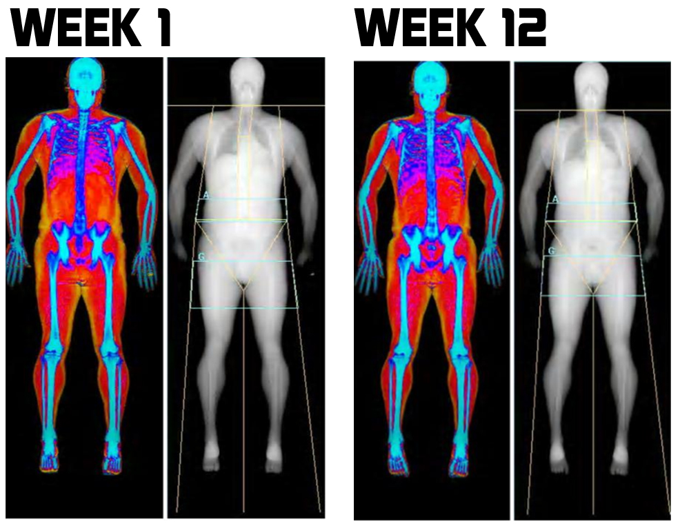 Before and after Dexa Scan